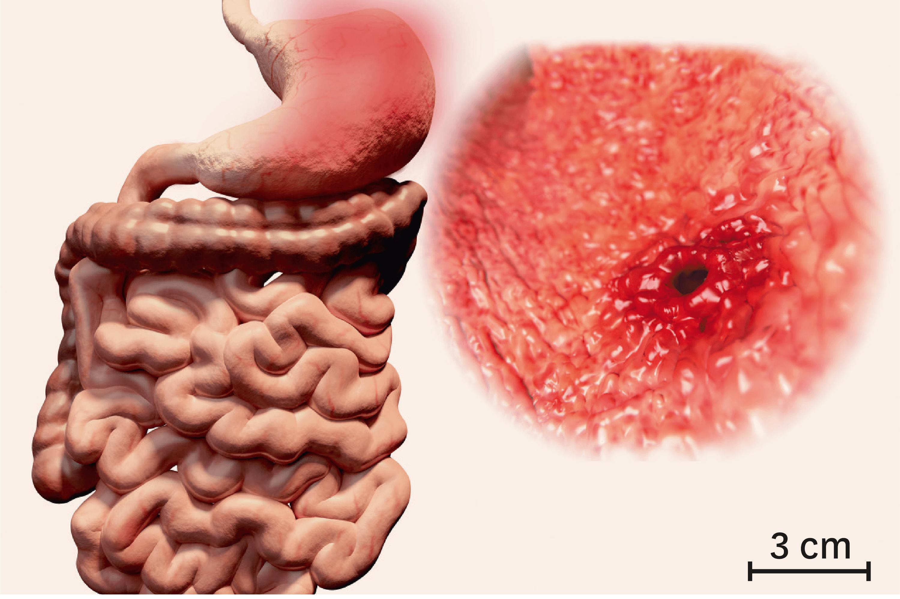 L'ulcère gastrique, une destruction de la muqueuse de l'estomac.