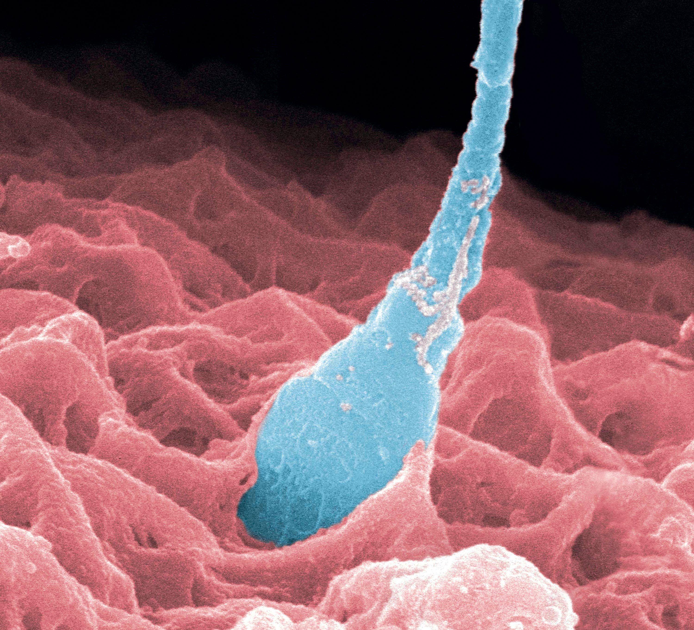 Une fécondation observée au microscope électronique (image colorisée).