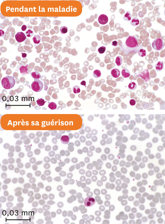 Les frottis sanguins d'Estelle pendant sa maladie puis après sa guérison.