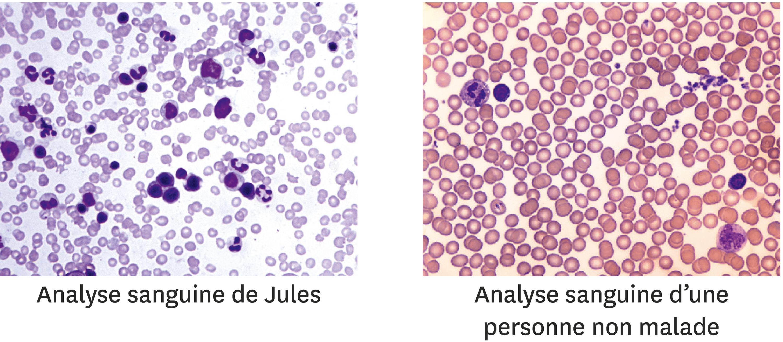 La comparaison du sang de Jules avec celui d'une personne non malade.