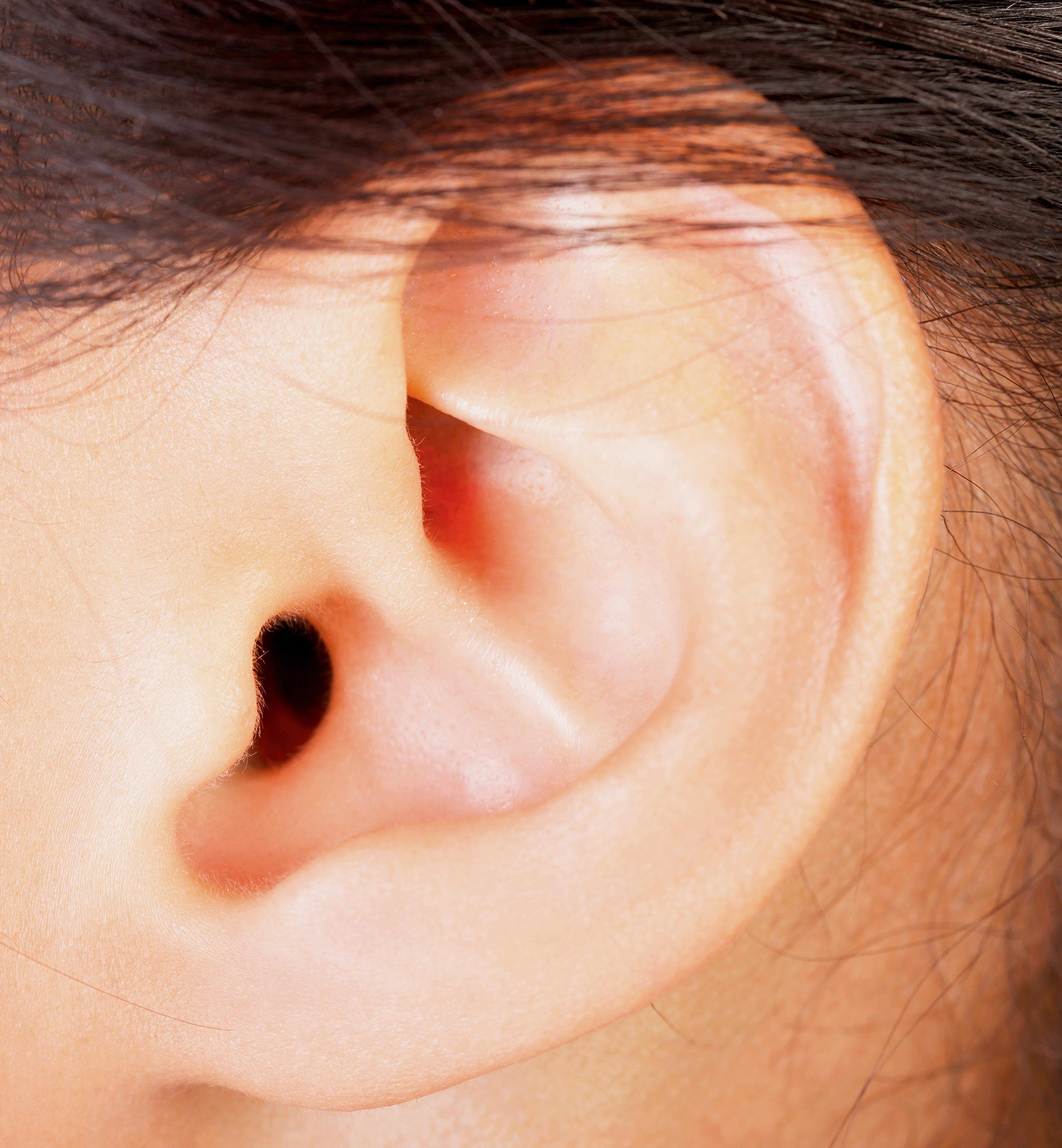 Un lobe d'oreille collé.