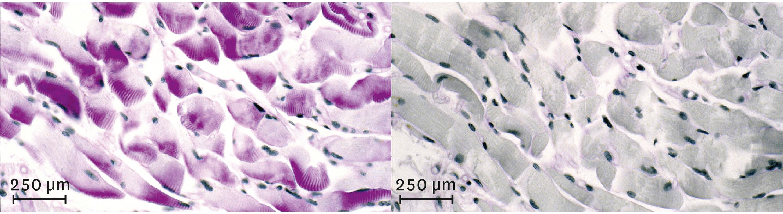 Observation d'un muscle avant (à gauche) et après (à droite) un effort physique de quelques minutes au microscope optique.
