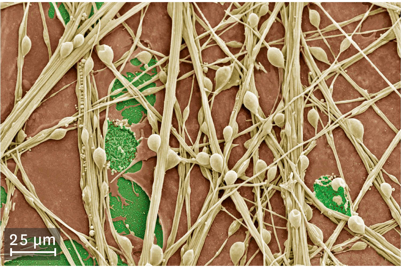 Une culture de cellules nerveuses observées au microscope électronique à balayage.
