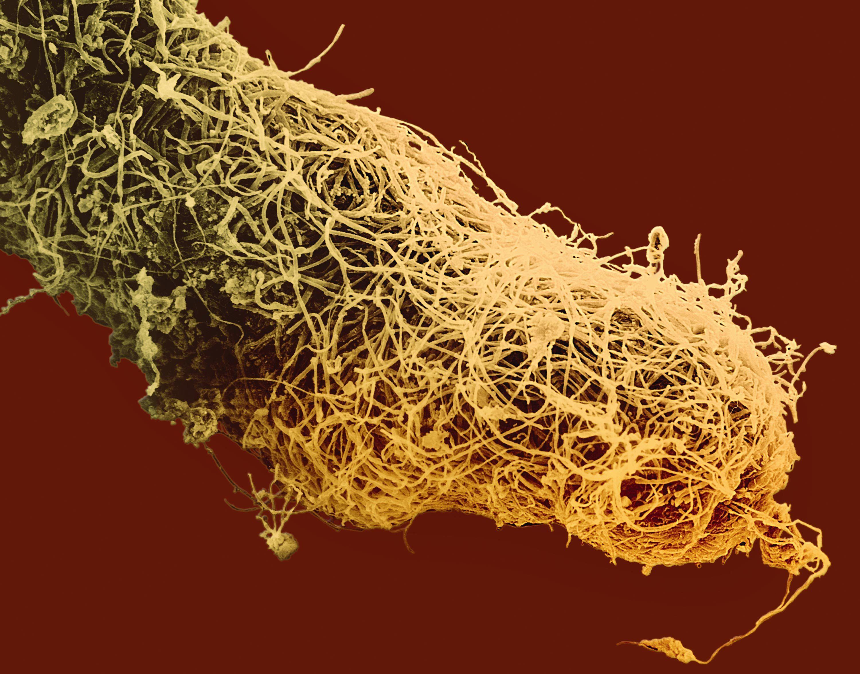 Des mycorhizes sur des racines d'eucalyptus observées au microscope électronique à balayage.