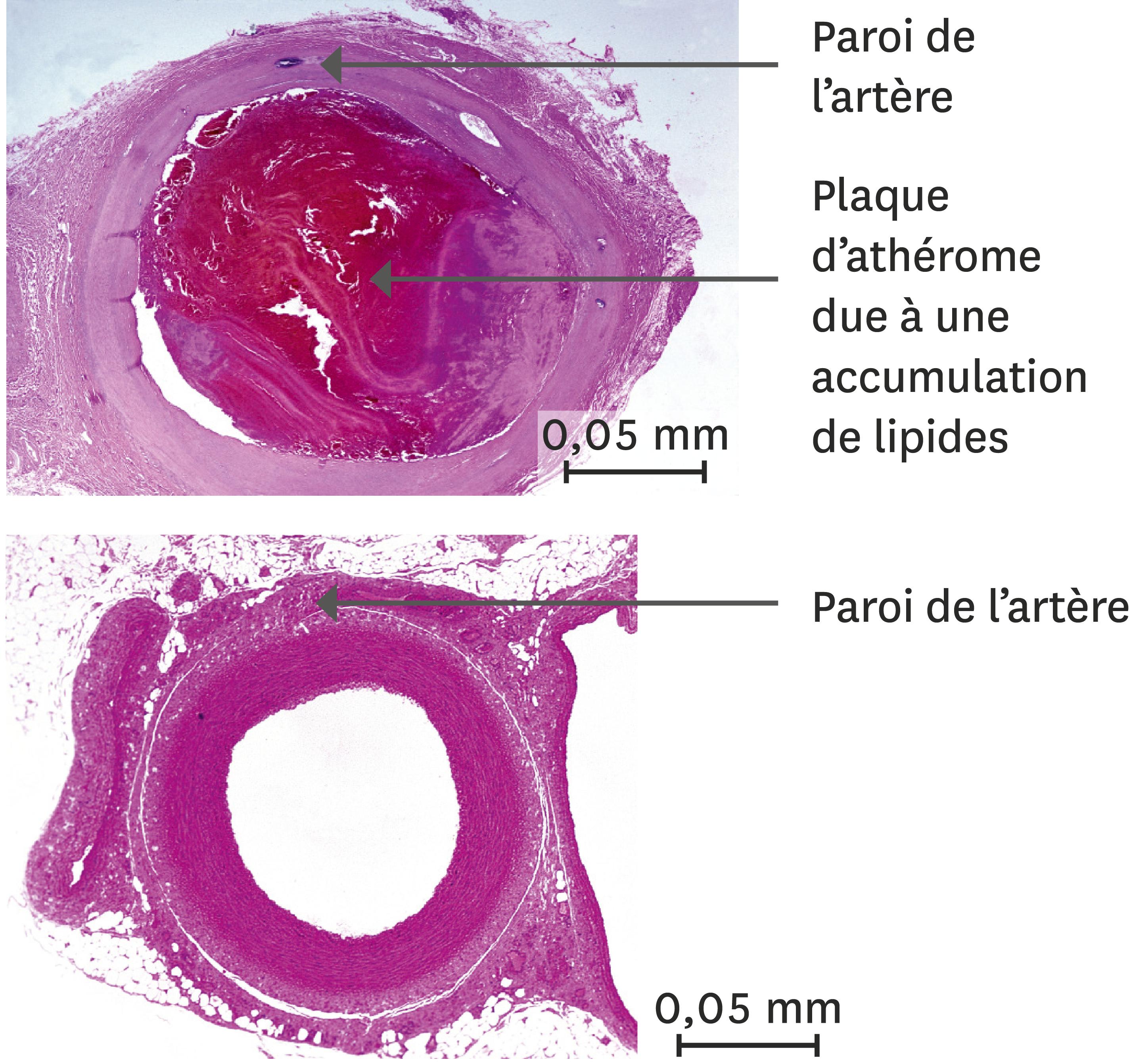 Une comparaison entre une artère d'un orteil en nécrose (en haut) et d'une artère normale (en bas).