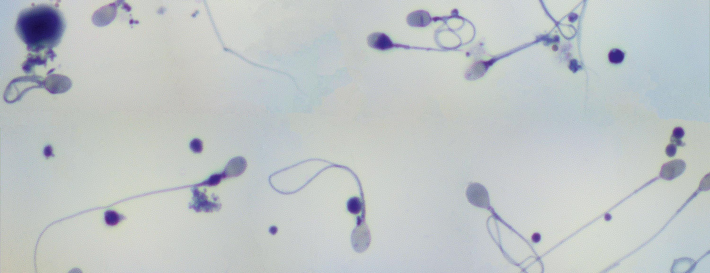 Observation de spermatozoïdes humains au microscope optique, grossis 800 fois.