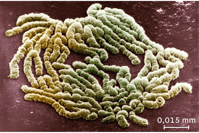 Une observation au microscope électronique à balayage des chromosomes au milieu de la division cellulaire.