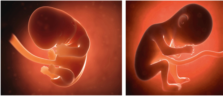 Le futur bébé au bout de 2 mois (à gauche) et de 6 mois de grossesse (à droite).