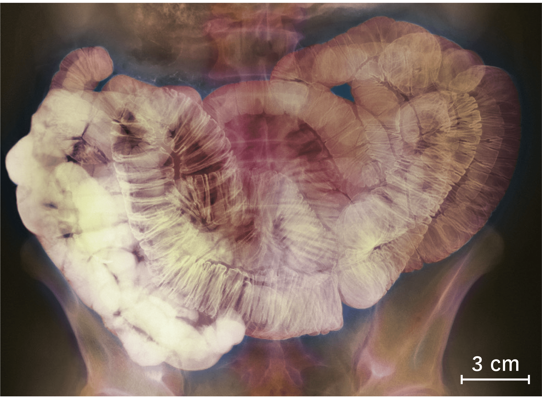 Une radiographie de l'intestin grêle chez un être humain 7 à 10 heures après ingestion du produit.