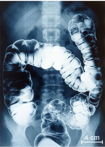une radiographie du gros intestin chez un tre humain 10 15 heures apr s ingestion du produit. Black Bedroom Furniture Sets. Home Design Ideas
