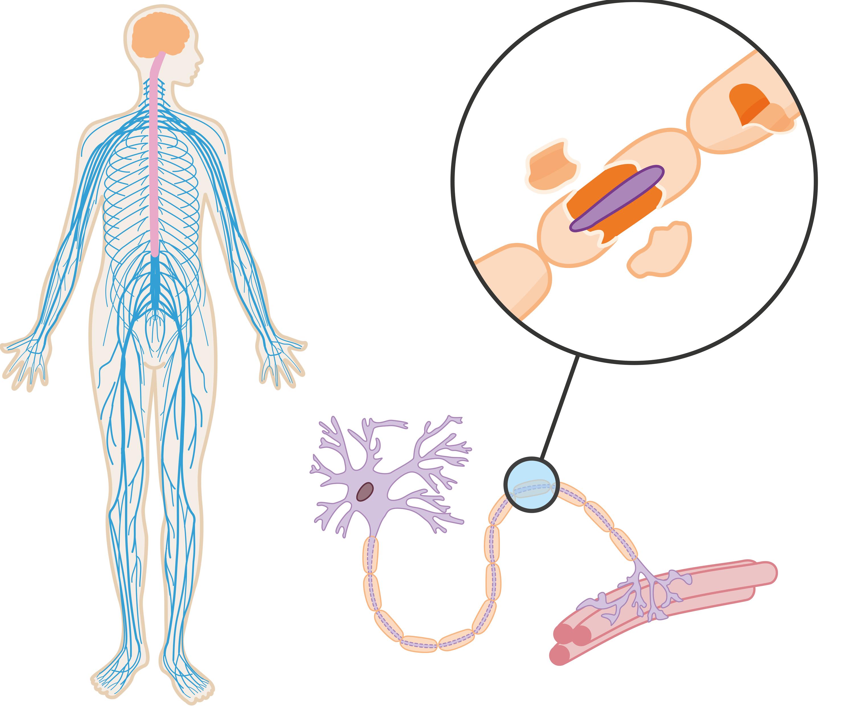 Le système nerveux d'une personne atteinte de sclérose en plaques.