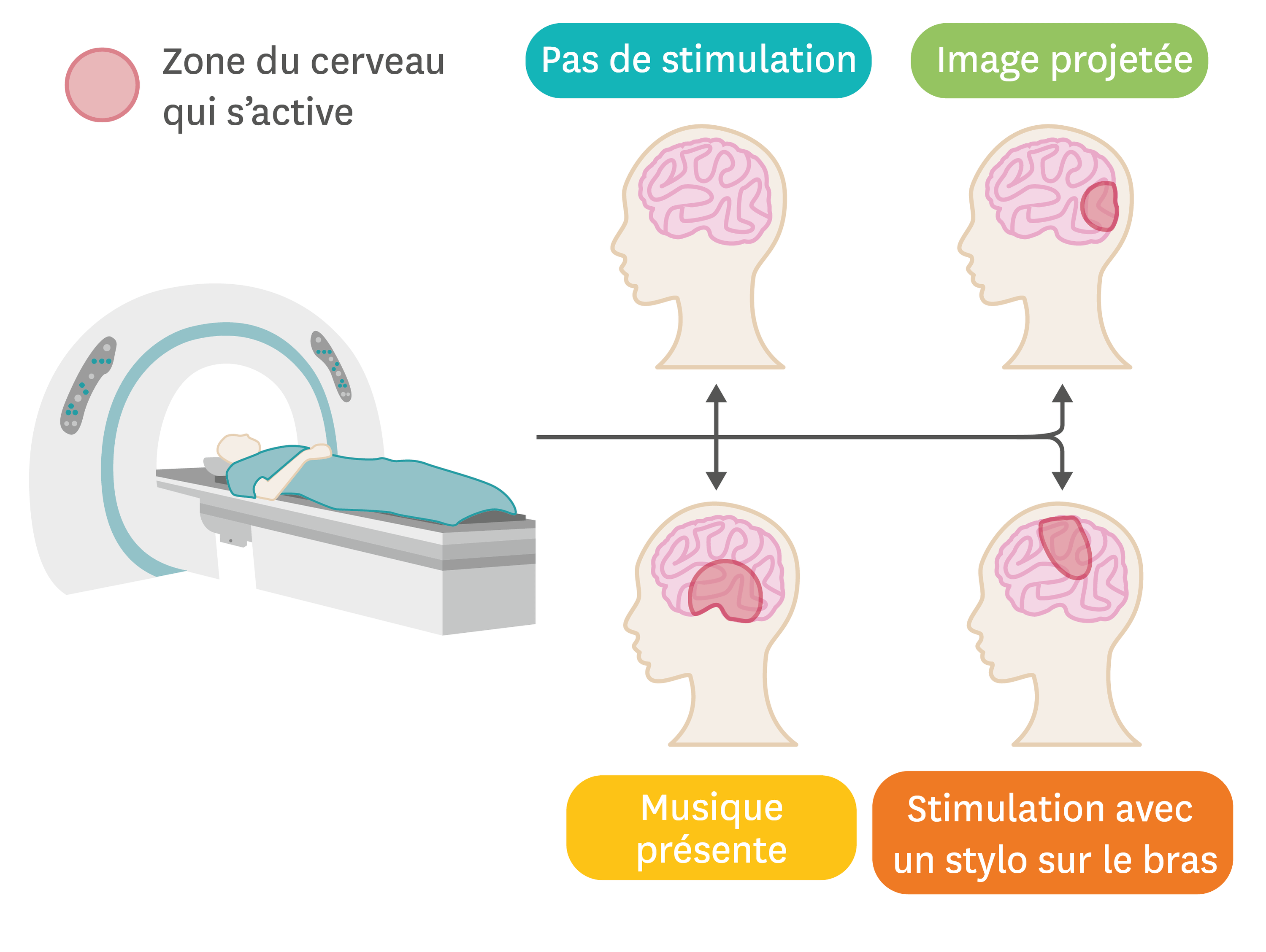 L'IRM permet de visualiser les zones d'activation du cerveau.