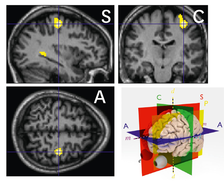 Le cerveau du guitariste lorsqu'il utilise sa main gauche. Les zones jaunes sont des zones plus actives qu'en temps normal (main immobile). A = Axial ; S = Sagittal et C = Coronal.