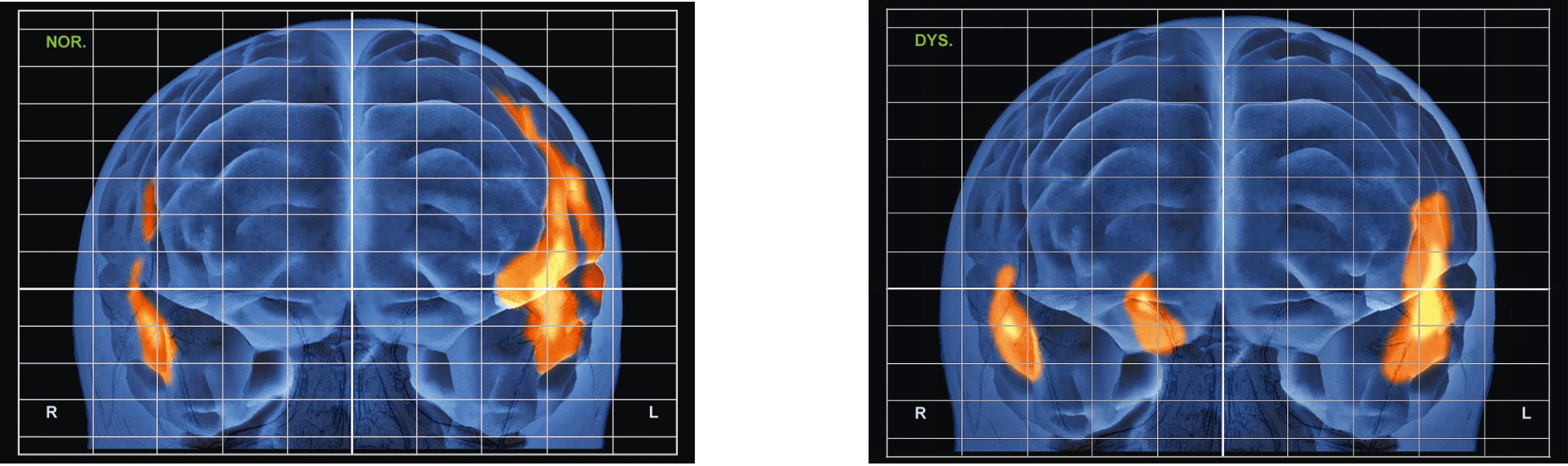 Les activations cérébrales d'un patient témoin (gauche) ou dyslexique (droite) en train de lire. Il s'agit d'une reconstruction 3D du cerveau.