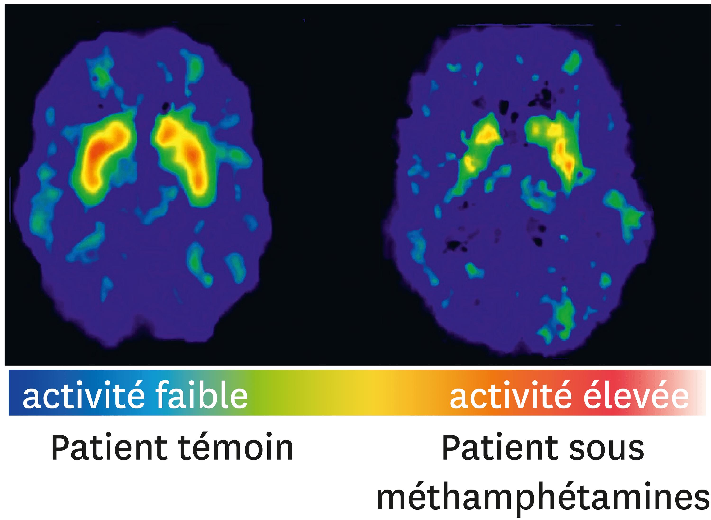 Des coupes de cerveau d'un patient témoin et d'une personne consommant des méthamphétamines.