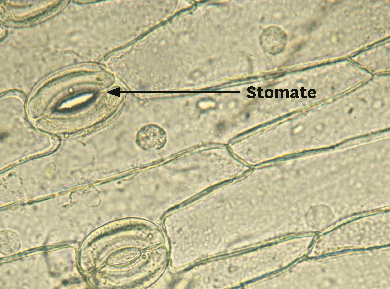 Un épiderme de feuille observé au microscope optique.