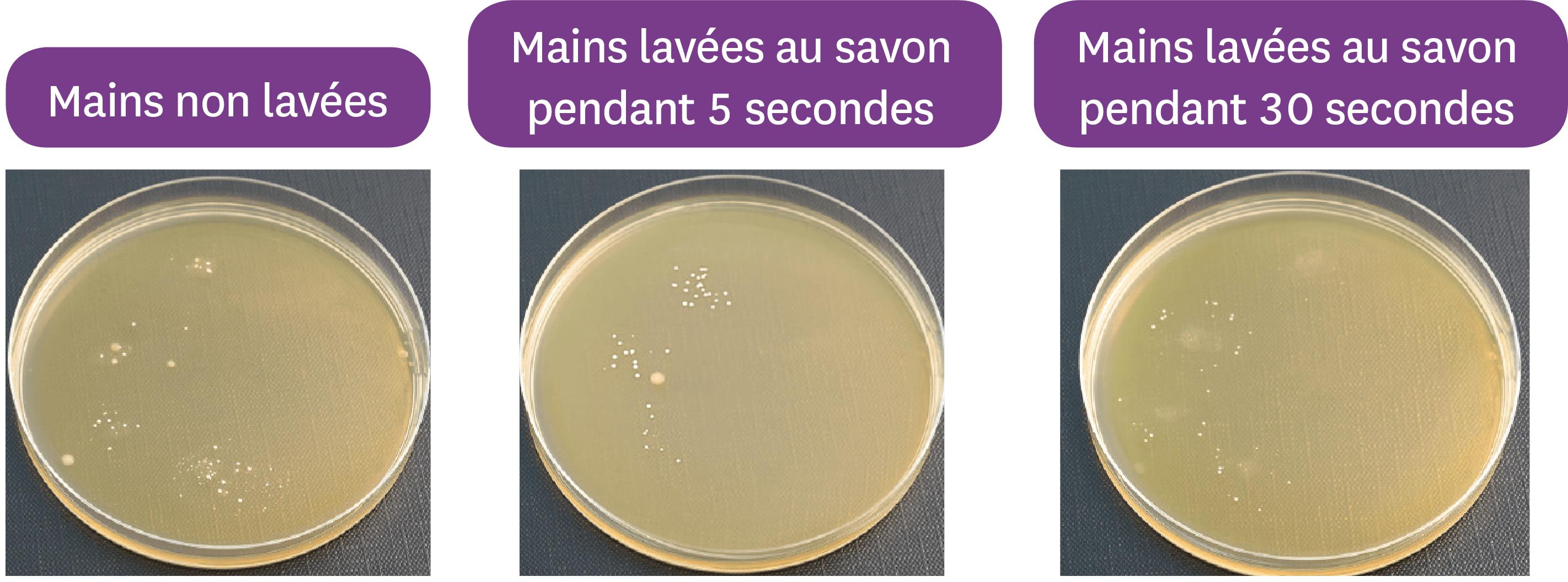 L'effet du lavage des mains au savon sur le microbiote cutané.