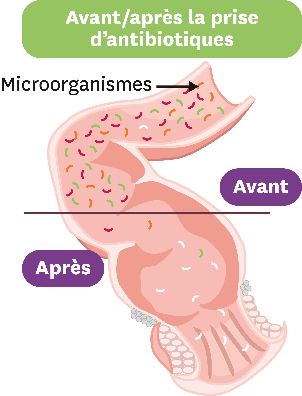 L'effet des antiobiotiques sur le microbiote intestinal.