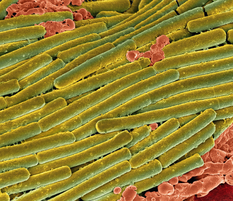 Des bactéries Clostridium difficile (en vert) couvrant des bactéries du microbiote (en rouge) lors d'une colite (image colorisée).