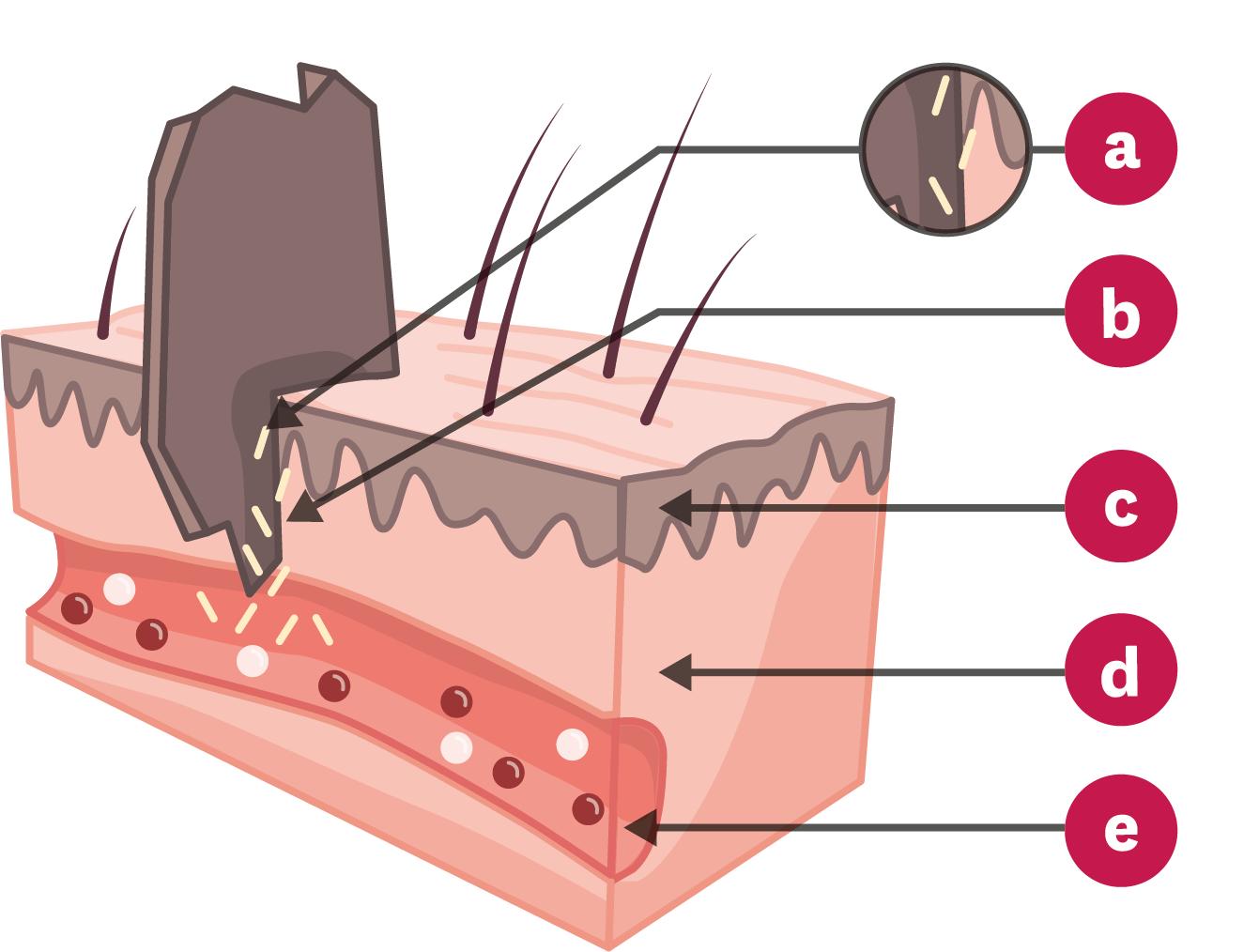 Schéma de la contamination d'une plaie.